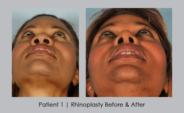 African_Am_Rhinoplasty_B_and_A_Dr_Silver_patient_1_view_2