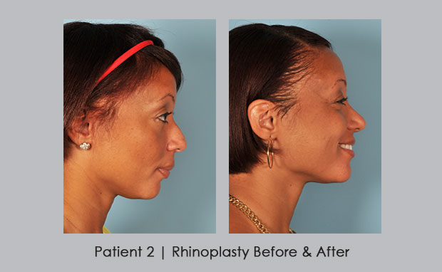 photos showing before and after of African American rhinoplasty | Dr. Silver
