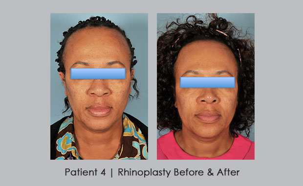 Before and after photos of African American rhinoplasty | Dr. Silver