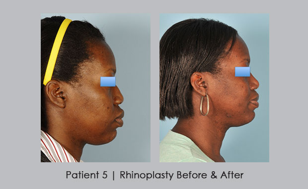 Before and after photos of African American Rhinoplasty | Atlanta, GA
