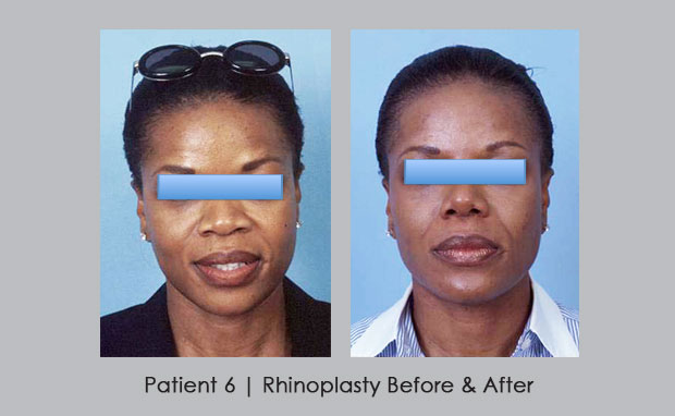 Before and after photos of African American Nose Reshaping | Dr. William Silver