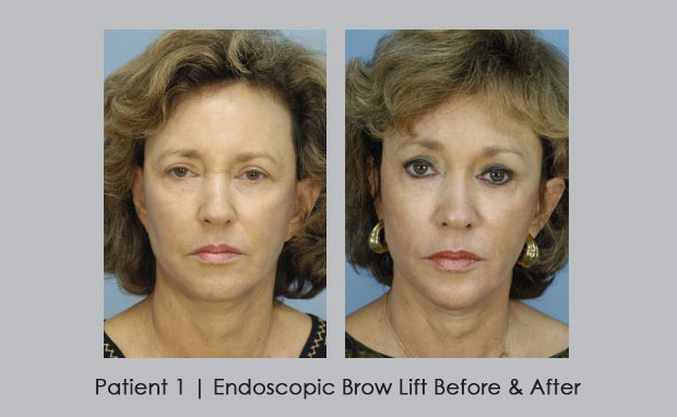 Before and After Photos of a Brow Lift | Dr. William E. Silver