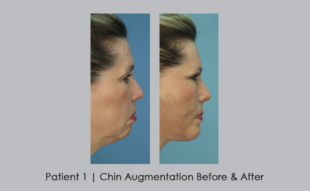 Before and After photos of a chin augmentation | Dr. Silver