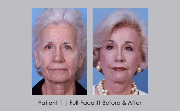 Before and After photos of a full-facelift