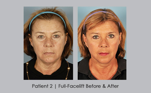 Before and after photos showing a full facelift