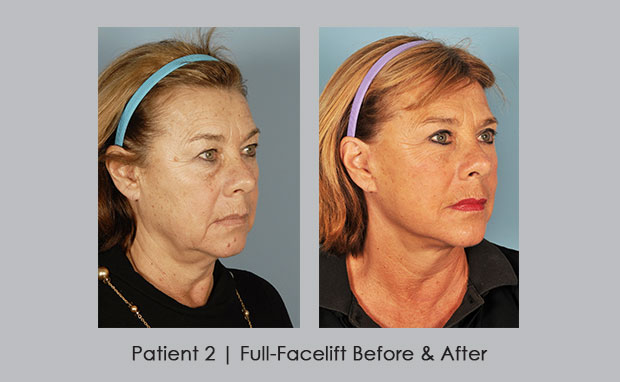 Before and after photos showing a facelift | Dr. Silver