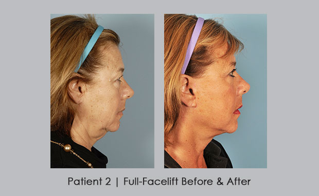 Before and After photos of a full-facelift | Dr. Silver