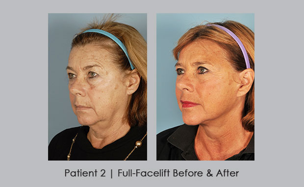 photos showing before and afters of a full-facelift