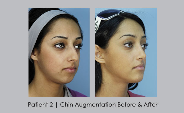 Before and Afters of Chin Augmentation  | Dr. William E. Silver