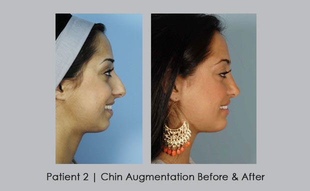 Before and After Photos of Chin Augmentation | Dr. William E. SIlver