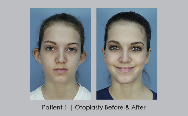 photo of before and after photos of Otoplasty | Dr. Silver