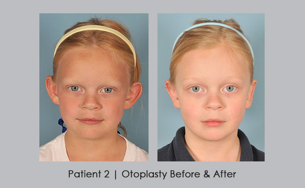 Patient-2 Otoplasty_young_girl