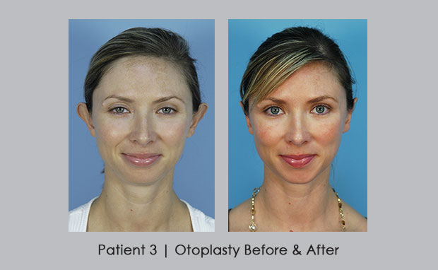 Before and After photo of Otoplasty | Dr. Silver