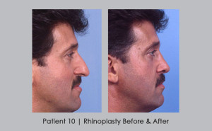 Before and after photos of rhinoplasty | Atlanta, GA