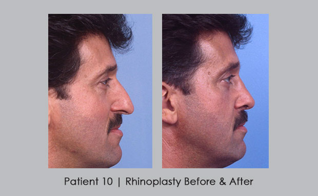 Before and after photos of rhinoplasty | Atlanta, GA | Dr. Silver