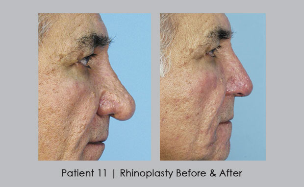 Rhinoplasty before and afters, Patient 11 | Dunwoody, GA | Dr. Silver