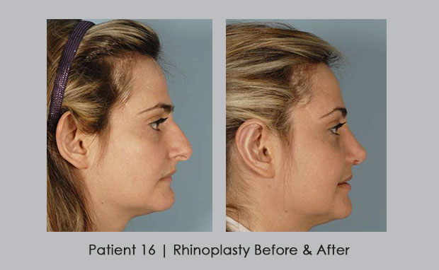 Rhinoplasty Before and After photos, patient 16 | Dr. Silver