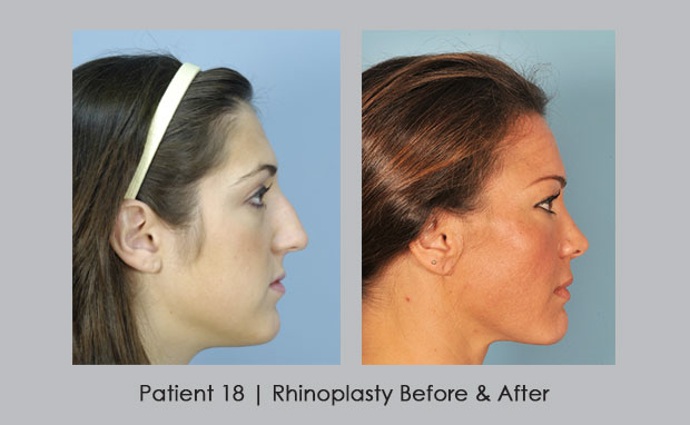 Rhinoplasty Before and After Photos | Dr. William Silver | View 1