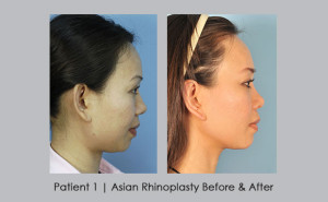 Before and After photos of Asian Rhinoplasty | Dr. Silver