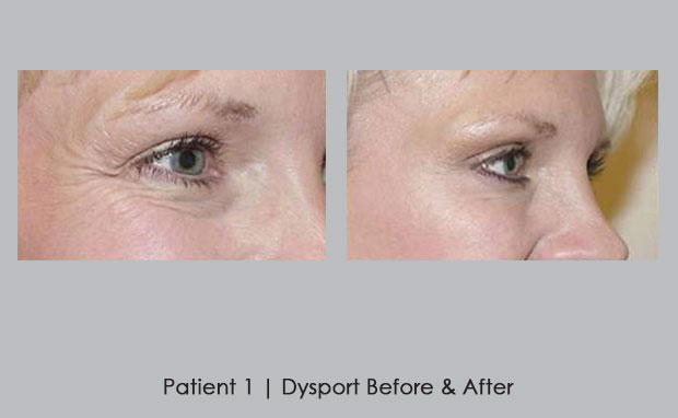 Before and after photos of Dysport | Dr. William E. SIlver