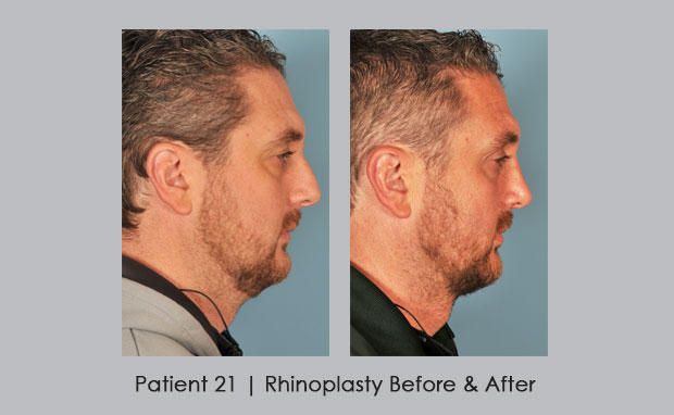 Before and After photos of a Nose Job by Dr. William E. Silver