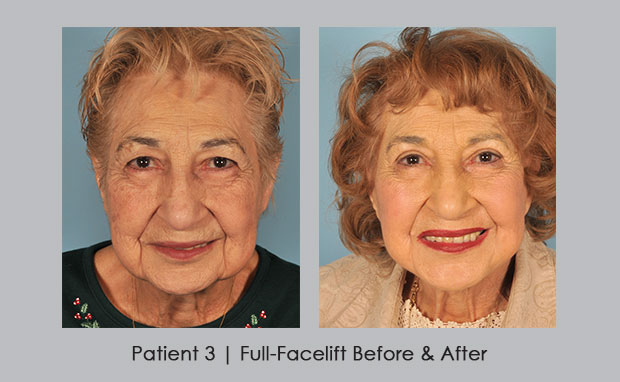 Before and After photos showing a full facelift | Dr. Silver