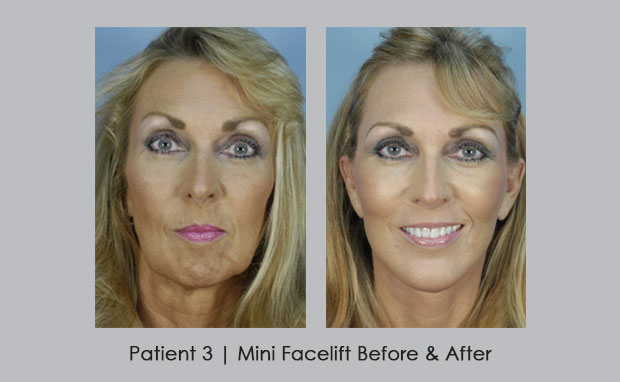 mini face lift atlanta before and after photos rhinoplasty specialist. Black Bedroom Furniture Sets. Home Design Ideas