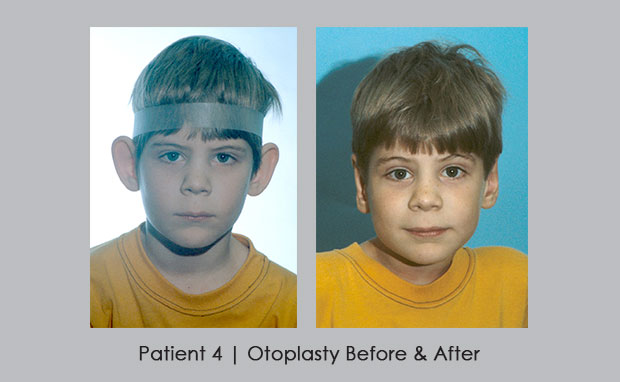 Before and After Otoplasty | Dr. William Silver
