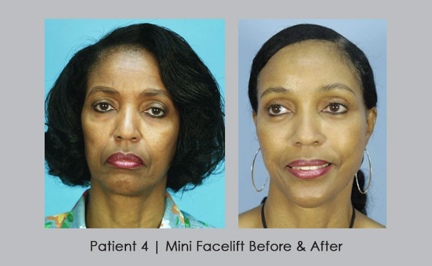 Before and After photos of a Mini Facelift | Dr. William E. Silver