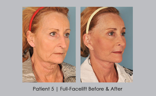Full-Facelift Before and Afters, Patient 5 | Dr. William E. Silver