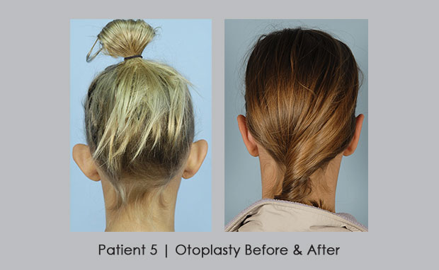 Rear view of young girl who had Otoplasty | Dr. Silver