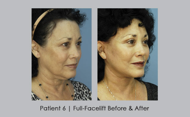 Full-Facelift Before and After Photos | Dr. Silver | Atlanta, GA