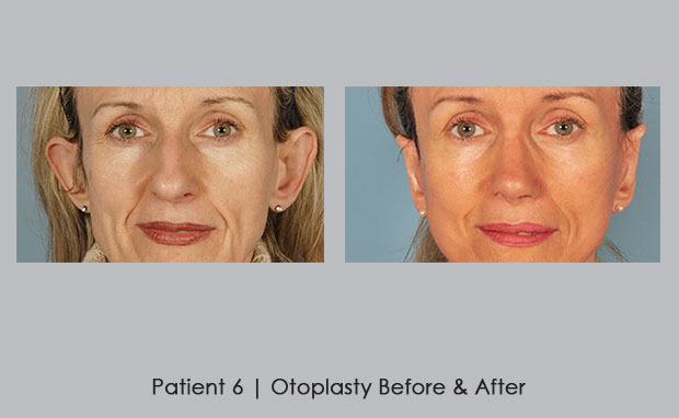Otoplasty surgery before and afters | Dr. William Silver