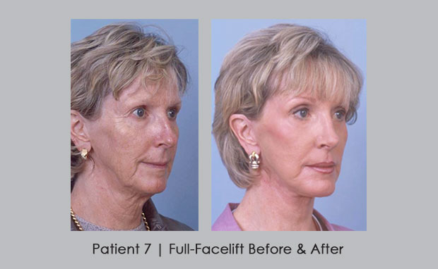 Full-Facelift Photos Before and After | Atlanta, GA | Dr. Silver