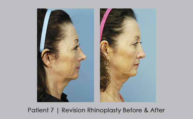 Before and after photos of revision rhinoplasty