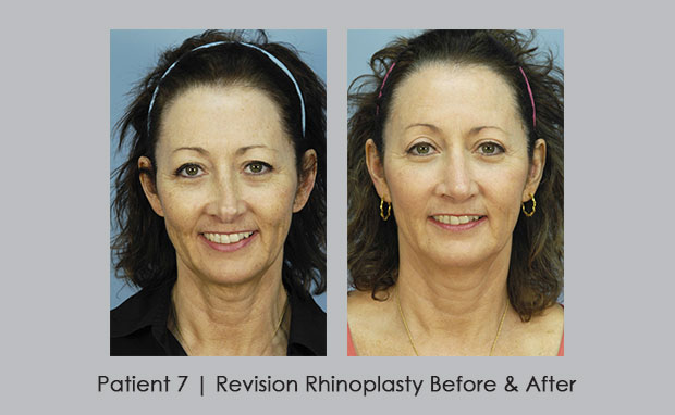 Before and after photos of revision rhinoplasty | Atlanta, GA