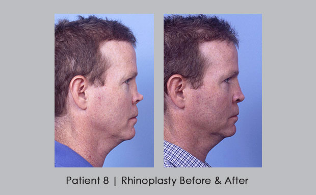 Before and after photo of reconstructive rhinoplasty | Dr. William Silver