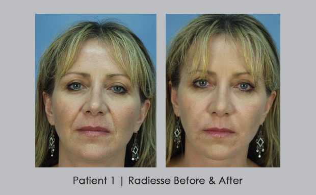 Before and After photos of Radiesse | Dr. Silver
