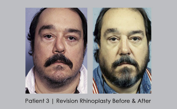 Before and after photos | Revision Rhinoplasty | Dr. William E. Silver