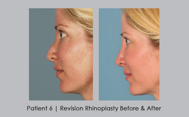photo of revision rhinoplasty patient | Dr. William Silver