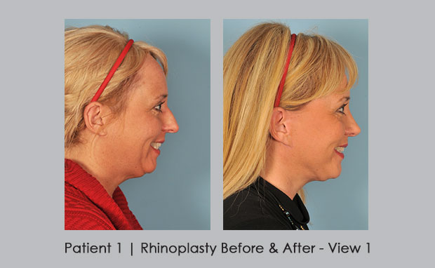 Before and After photos of Rhinoplasty, Patient 1 | Dr. Silver