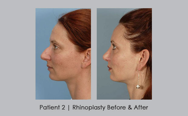 Before and After photos of Rhinoplasty | Patient 2 | Dr. Silver