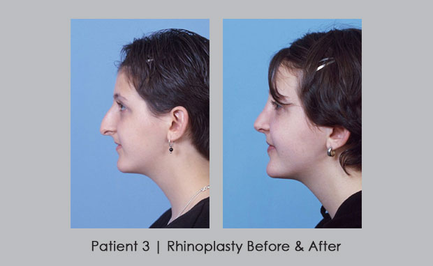 Before and Afters photos of Rhinoplasty | Patient 3 | Dr. William Silver