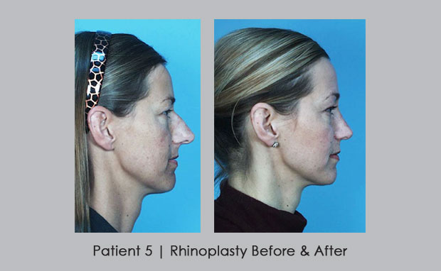 Rhinoplasty Before and After Photos | Patient 5 | Dr. Silver