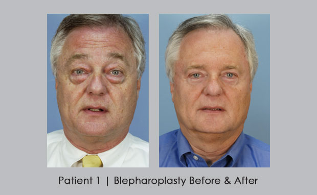 Blepharoplasty Before and After | Dr. William Silver