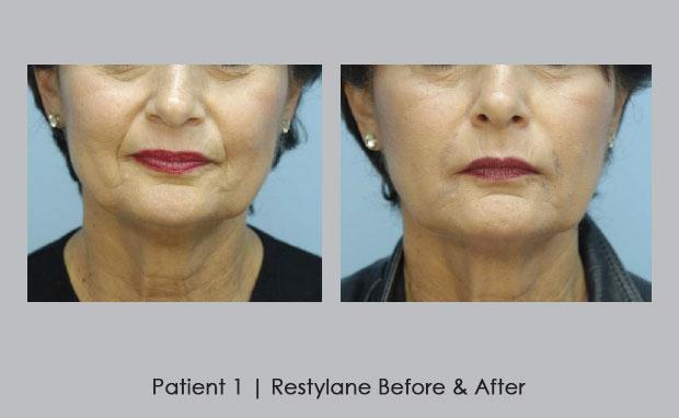 Before and After photos of Restylane | Dr. William Silver