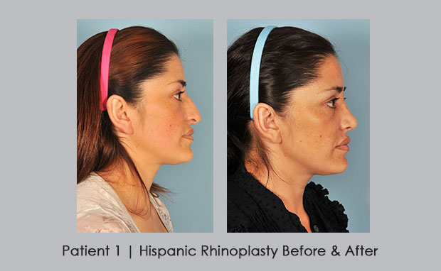 Before and after photos of hispanic rhinoplasty | Dr. Silver