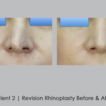 before and after photos of revision rhinoplasty | Dr. William Silver