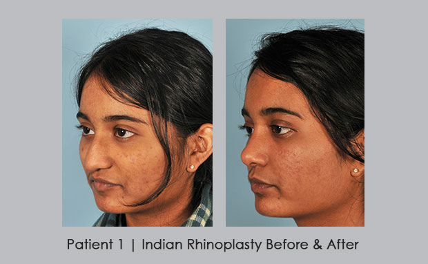 Indian Rhinoplasty Before and After photos | Dr. Silver