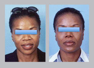before and after photos of African American Rhinoplasty